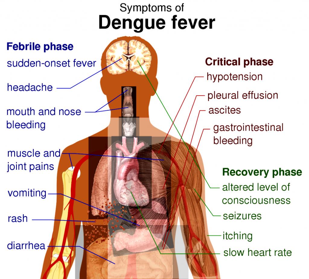 febra dengue